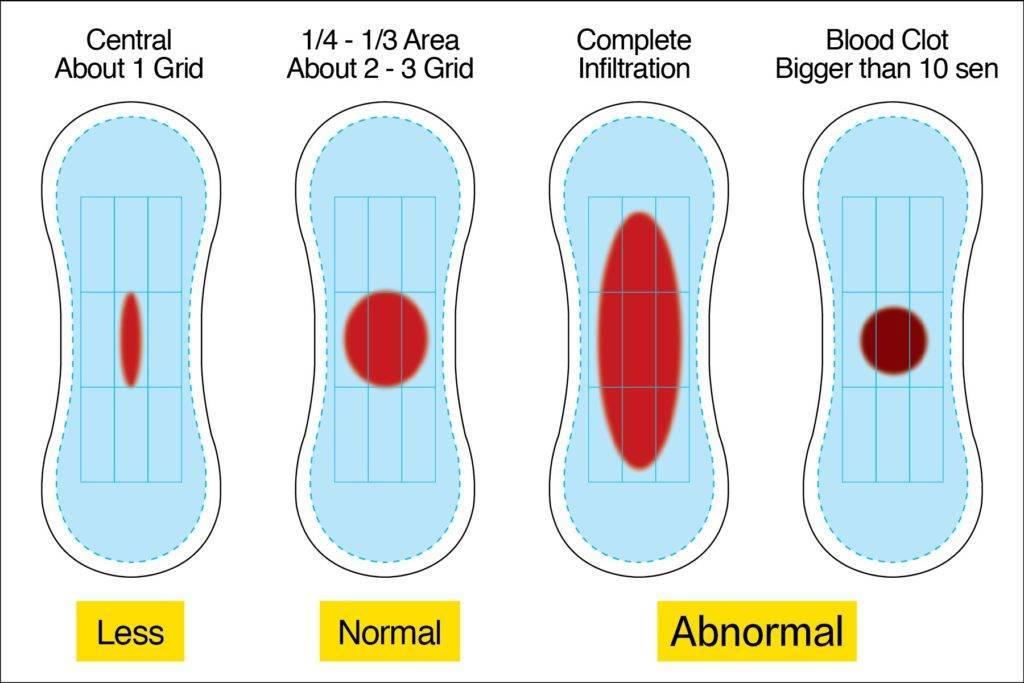 Почему месячные без крови – основные причины патологии