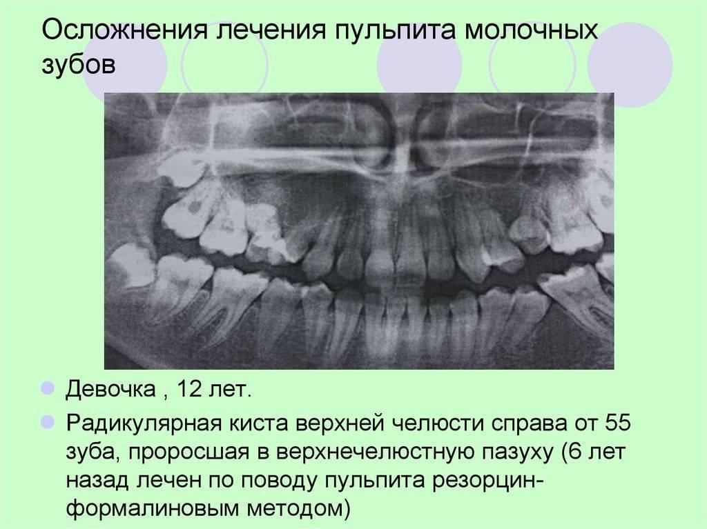 Лечение пульпита у детей, пульпит молочных и коренных зубов