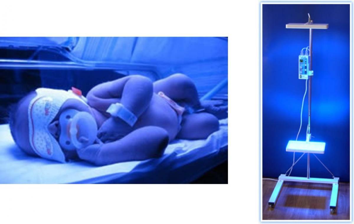 Фототерапия для лечения желтухи у новорожденных