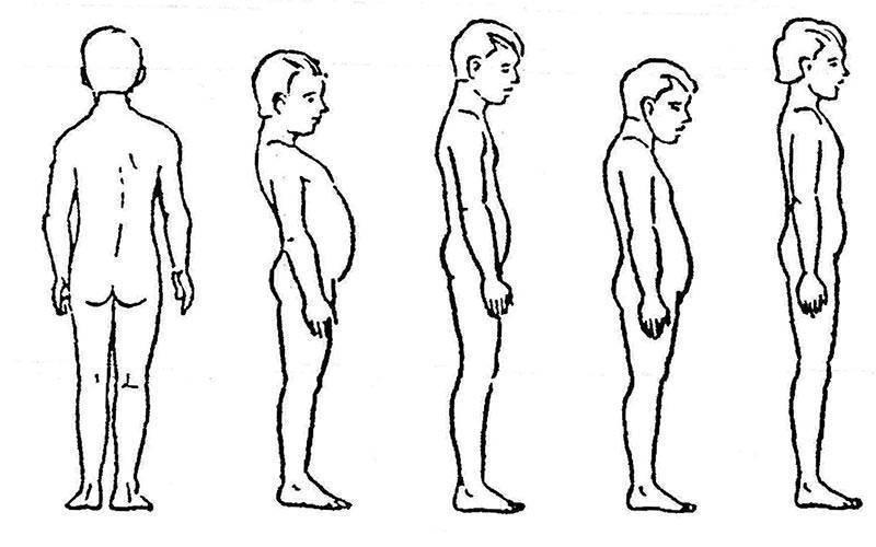 Сколиоз у детей школьного возраста: что делать при искривлении позвоночника