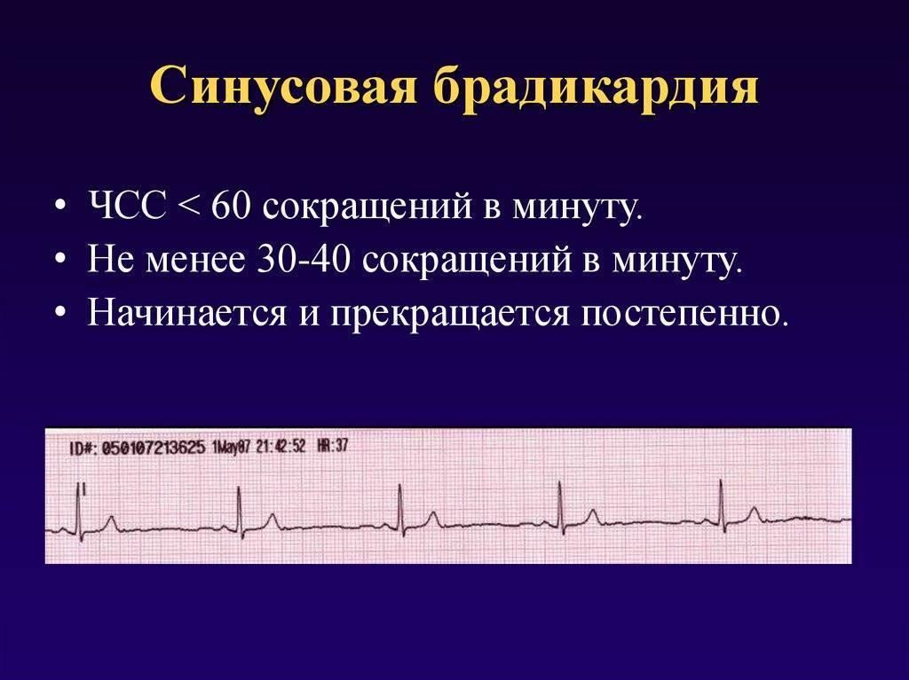 Синусовая аритмия у подростков | лечение сердца