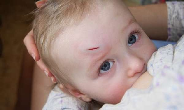 Как лечить уплотнение после получения травмы. что делать, если ребенок сильно ударился лбом и у него появилась шишка, через сколько времени проходит гематома