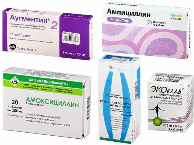 Антибиотик при ангине: разновидности антибиотических препаратов для взрослого и ребёнка