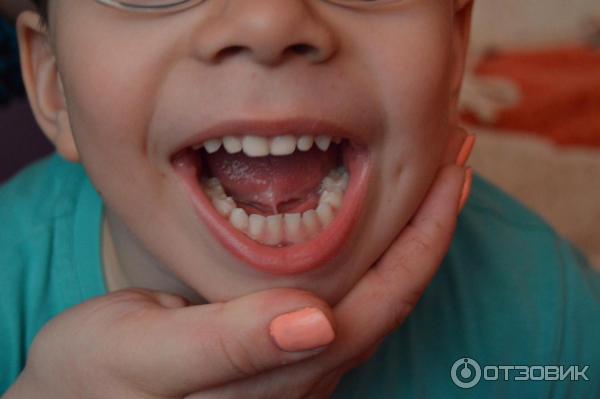 Как подрезают уздечку языка ребенку? методы подрезания и особенности пластики, коррекция лазером. как происходит процедура при подрезке у новорожденных? в каком возрасте лучше решиться на процедуру?