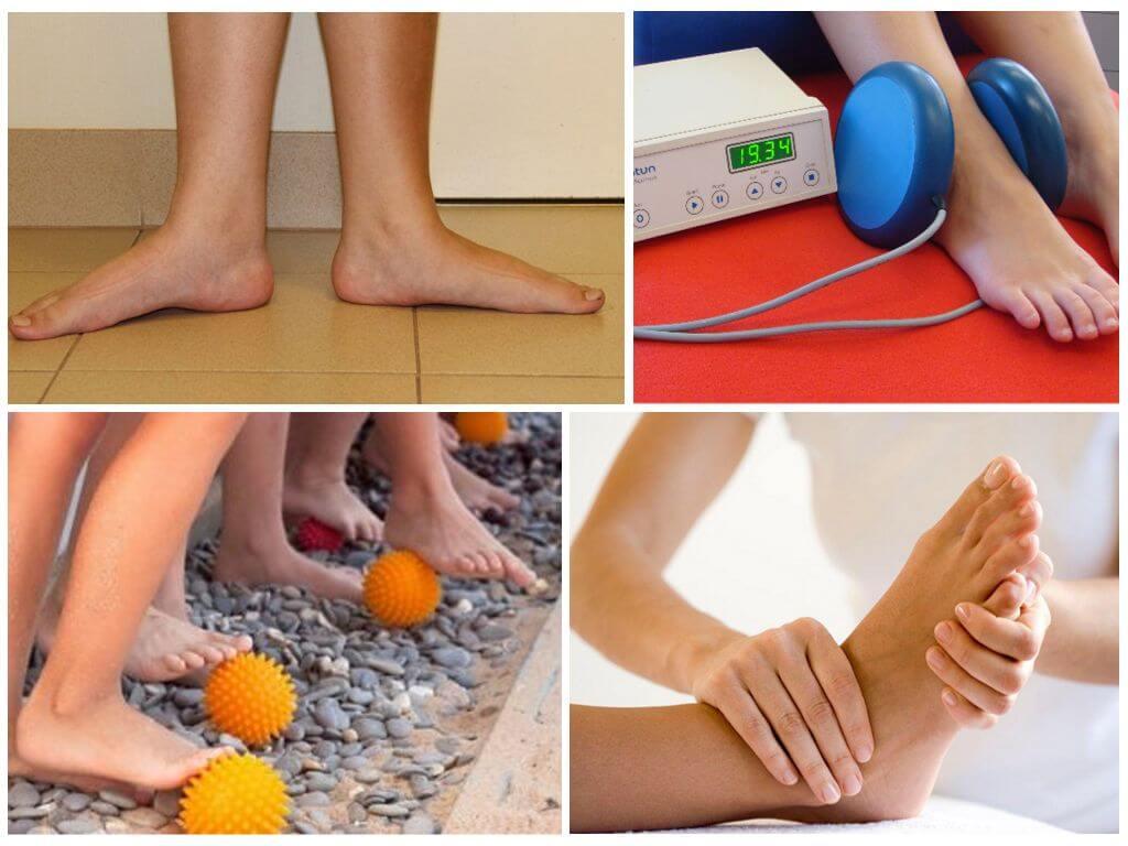 Плоскостопие у детей (50 фото): причины, виды, как лечить в домашних условиях, помогают ли ортопедические стельки, обувь