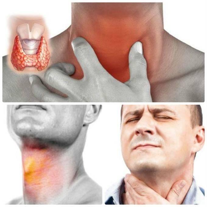 Першение в горле и сухой кашель, лечение у ребенка, что лучше