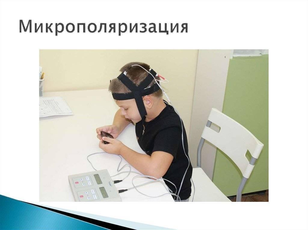 Микрополяризация головного мозга: что это такое, показания, противопоказания