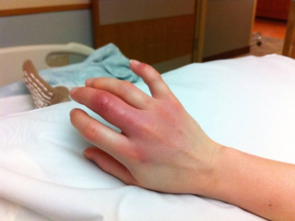 Столбняк - симптомы, первые проявления, прививка при травмах, ранах и укусах животных