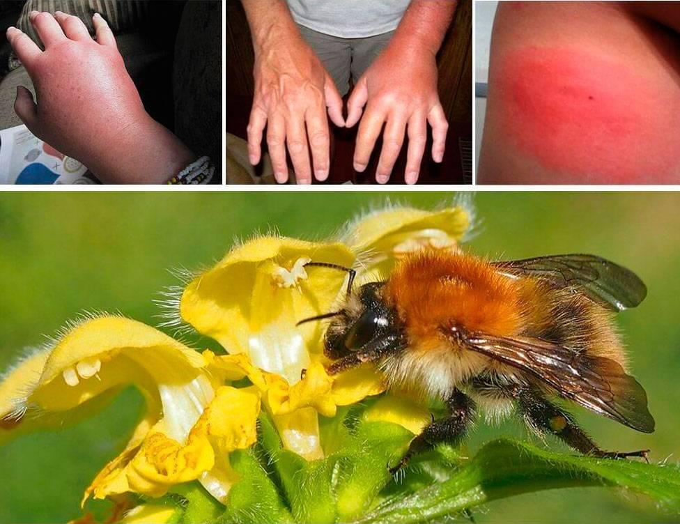 Что делать, если ребенка покусали пчелы, змеи, пауки или комары? как правильно обрабатывать укусы и бороться с приступом аллергии