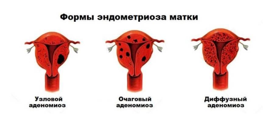 Аденомиоз матки - что это такое, симптомы и лечение, отзывы женщи