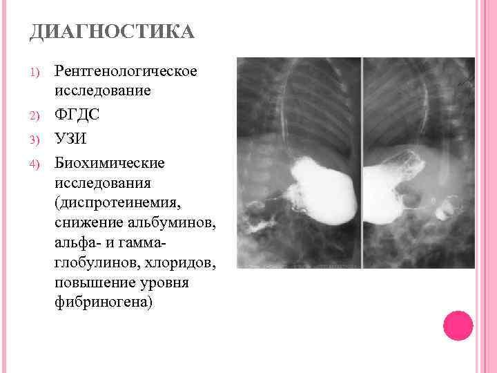 Пилоростеноз у новорожденных - симптоматика, диагностика и лечение - больвжелудке