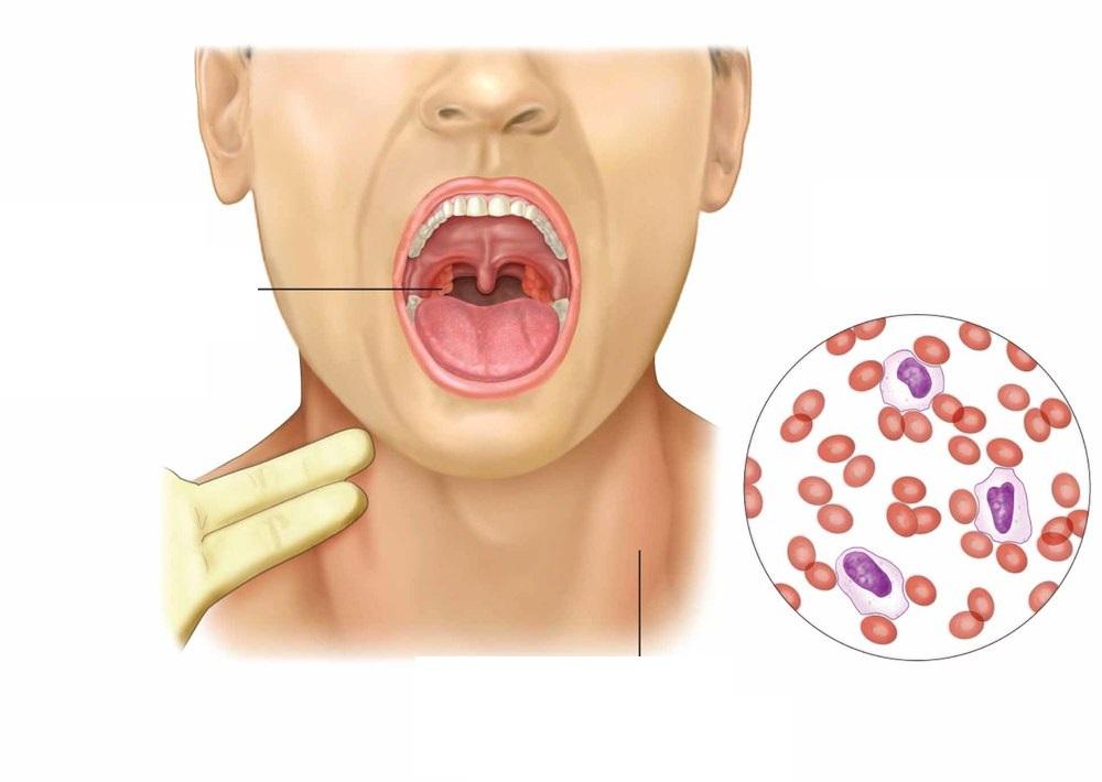 Вирусная ангина у детей: симптомы и лечение, отличие бактериальной, чем лечить аденовирусную форму