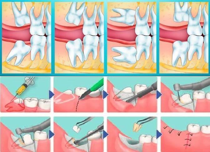 Как удалить молочный зуб в домашних условиях
