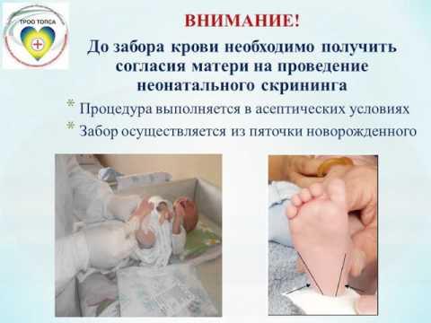 Особенности неонатального скрининга у новорожденных
