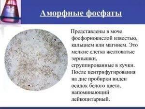 Аморфные фосфаты в моче у ребенка — почки
