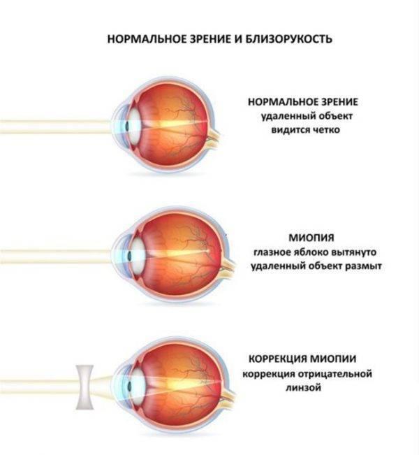 Гиперметропия (дальнозоркость) слабой степени – что это такое