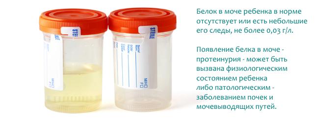 Белок в моче у ребенка – норма. повышенный белок в моче у ребенка – причины, лечение