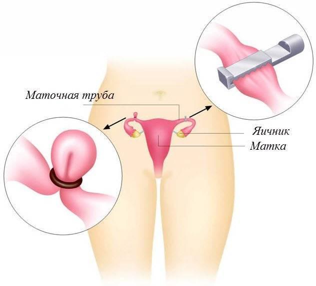 Последствия перевязки маточных труб при кесаревом сечении
