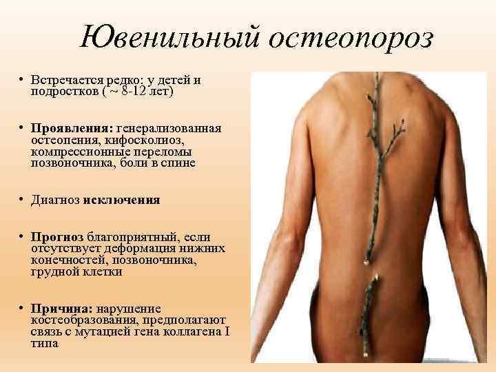 Остеопороз у детей: симптомы и лечение ювенильной формы патологии