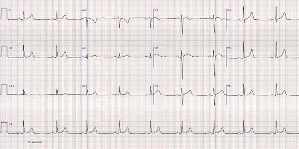 Нарушение внутрижелудочковой проводимости сердца: что это такое, виды, лечение | osostavekrovi.com