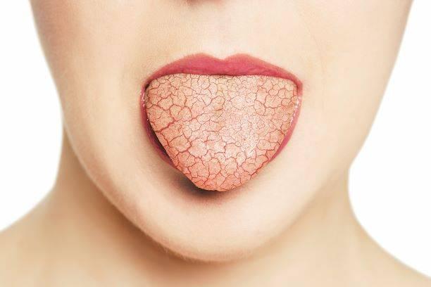 Устранение сухости во рту