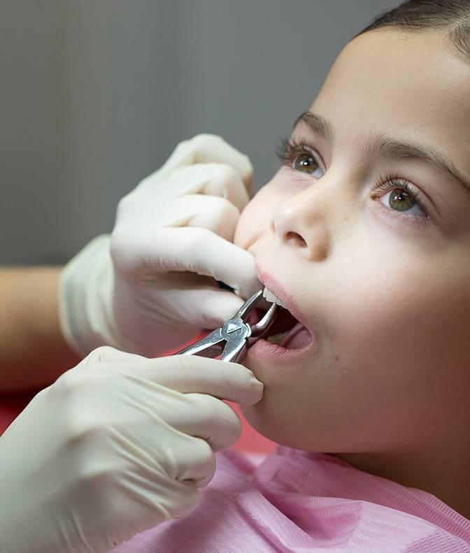 Удаление молочных зубов у детей: больно ли, последствия
