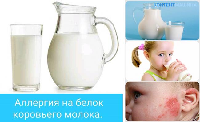 Аллергия на молоко у ребенка: симптомы и что делать
