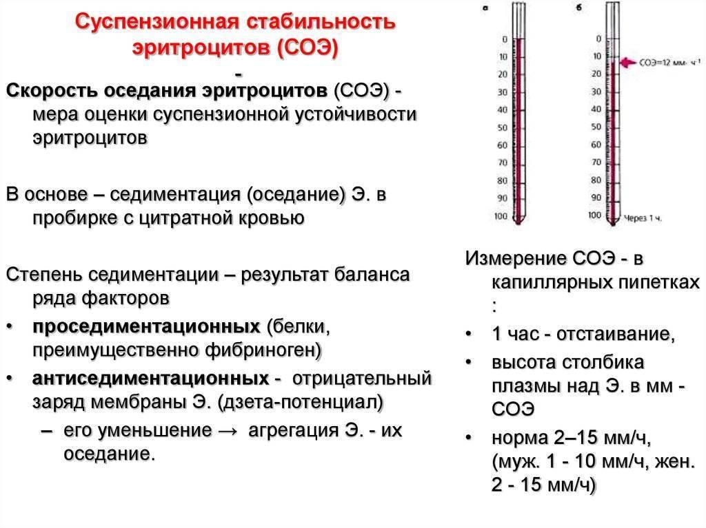 Норма соэ у детей по возрасту ???? с таблицей, причины повышенных и пониженных показателей в крови