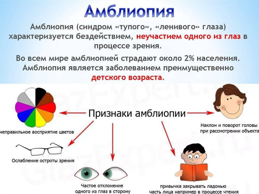 Сходящееся содружественное косоглазие у детей: причины, диагностика, лечение