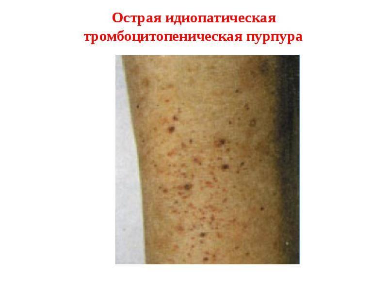 Геморрагическая сыпь у детей