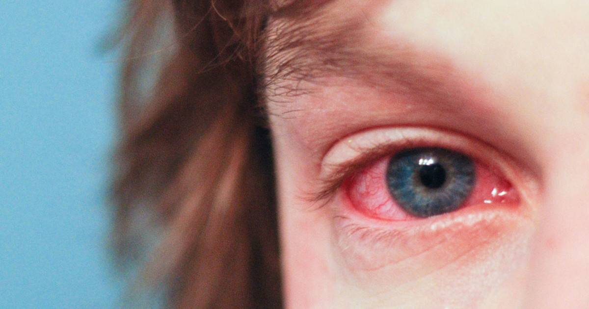 Воспалился глаз у ребенка — как и чем лечить?