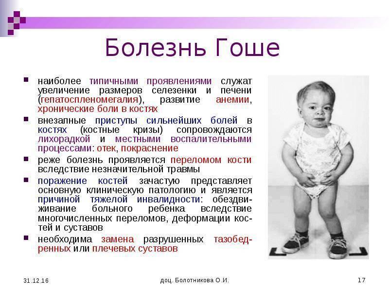 Спленомегалия у детей - что это такое, и как лечить: причины и лечение