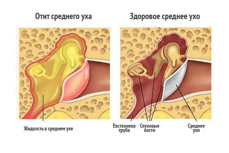 Экссудативный отит у ребенка: лечение двусторонней, средней, острой и других форм заболевания