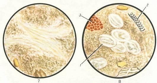 Йодофильная флора в кале у взрослого: причины и лечение