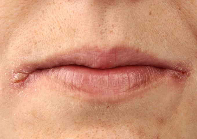 Заеды в уголках рта у ребенка - симптомы и лечение