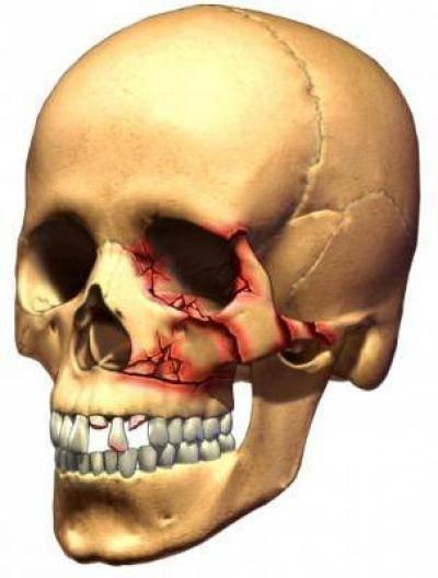 Переломы костей у детей: лечение, симптомы, признаки, первая помощь
