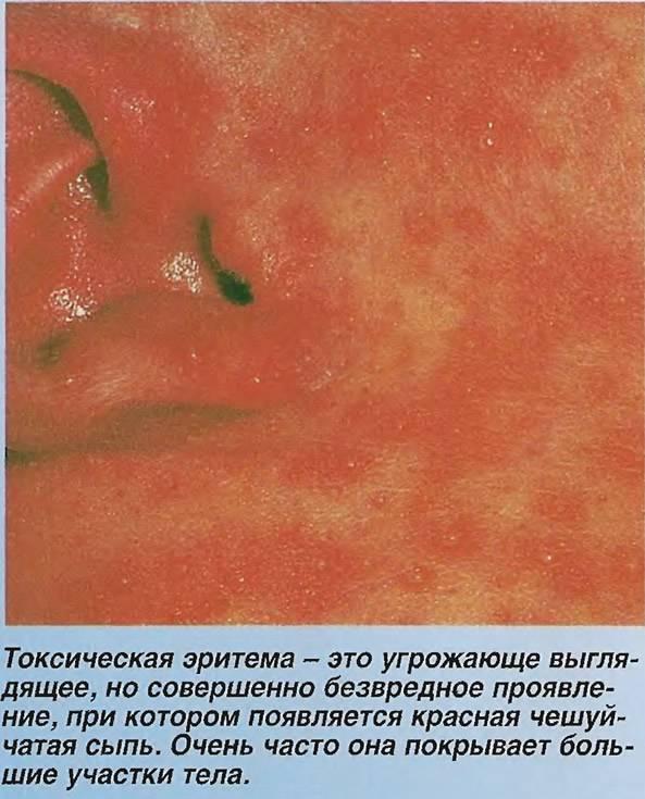Токсическая эритема у новорожденных: что это такое, причины появления, как лечится | mfarma.ru