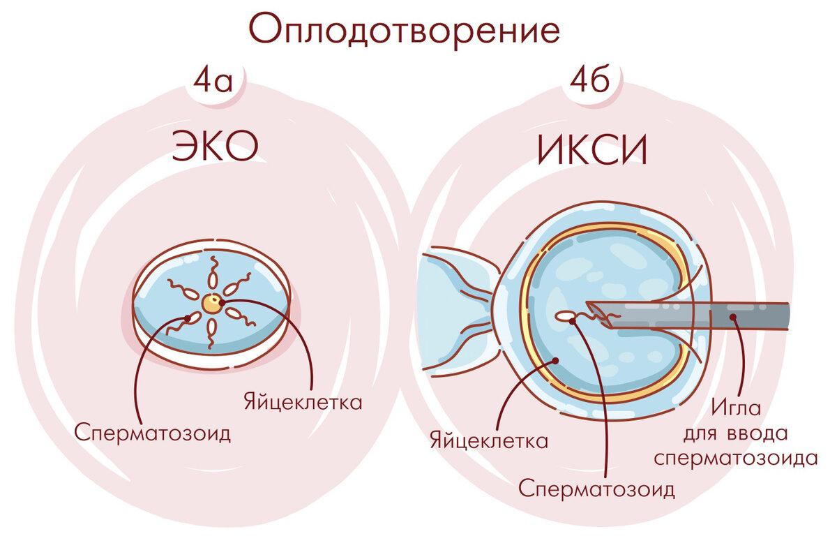 Методика экстракорпорального оплодотворения: описание, показания для обследования, список анализов