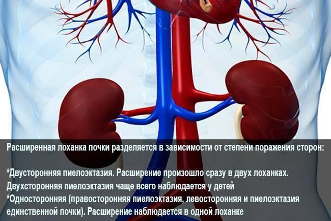 Пиелоэктазия почек (правой, левой, обеих): что это такое и как лечить