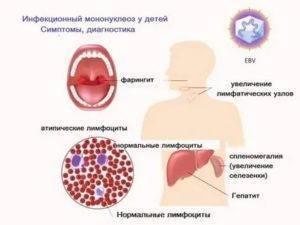 Стоматит у детей: инкубационный период, его фазы и длительность