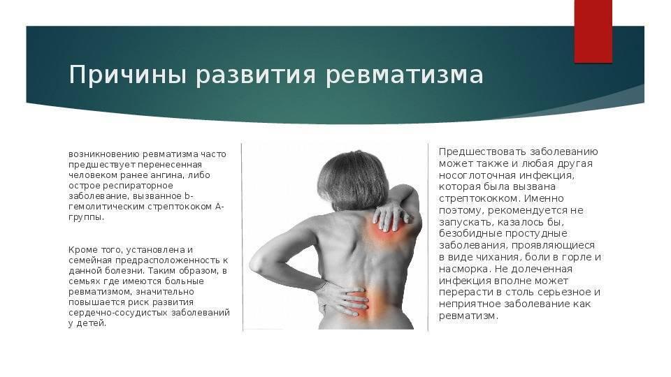 Детский ревматизм, его особенности и лечение
