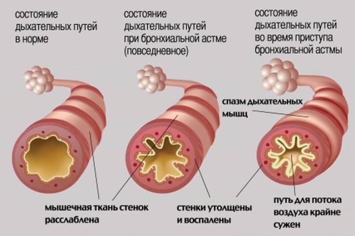 Как начинается бронхиальная астма у детей: признаки, симптомы и лечение