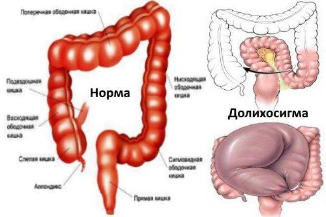 Долихосигма кишечника у ребенка лечение - помощь доктора