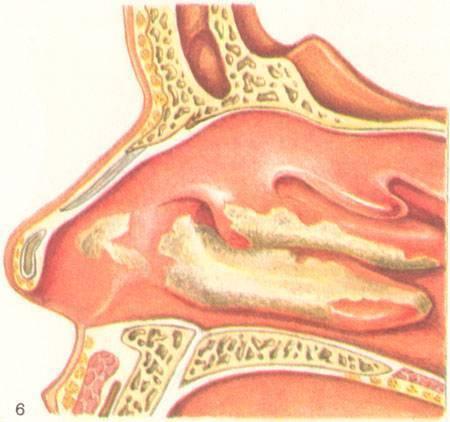 Причины аллергического отека носа, отличия проявлений при аллергии и простуде, лечение и профилактика патологии