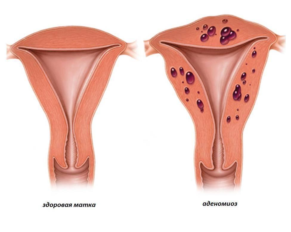 Можно ли забеременеть при опущении матки: особенности и опасность состояния