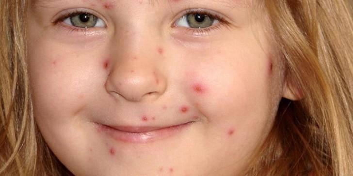 Герпесная инфекция у детей: симптомы и последствия заражения