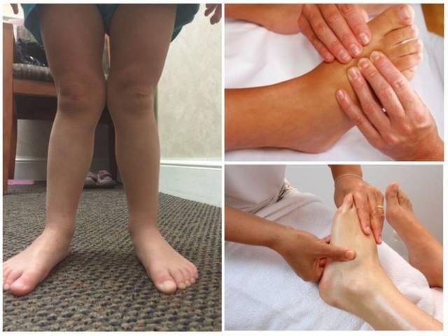 Плосковальгусные стопы у детей: техника массажа по видеоурокам - все о суставах