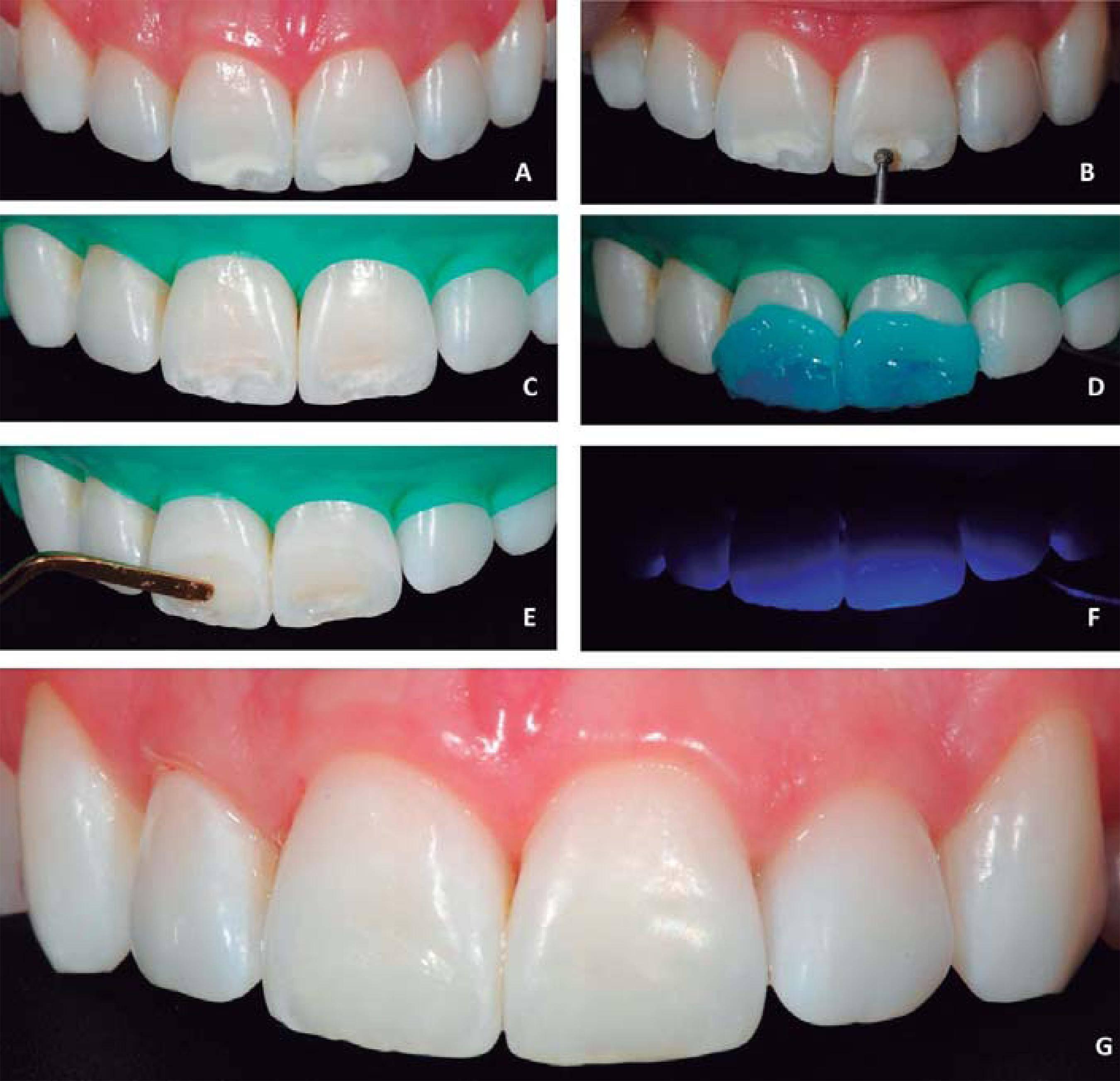 Все о фторировании зубов у детей: особенности процедуры и отзывы