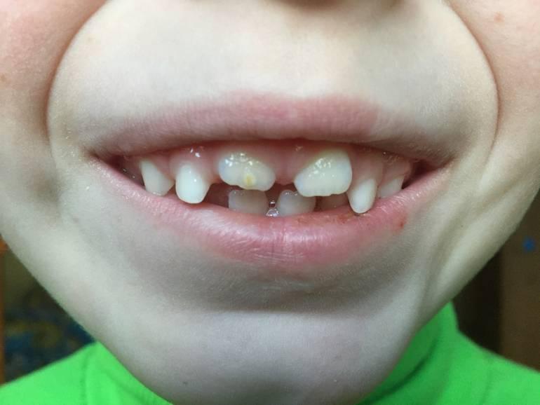 Желтый налет на зубах у ребенка: почему появляются пятна и что делать?