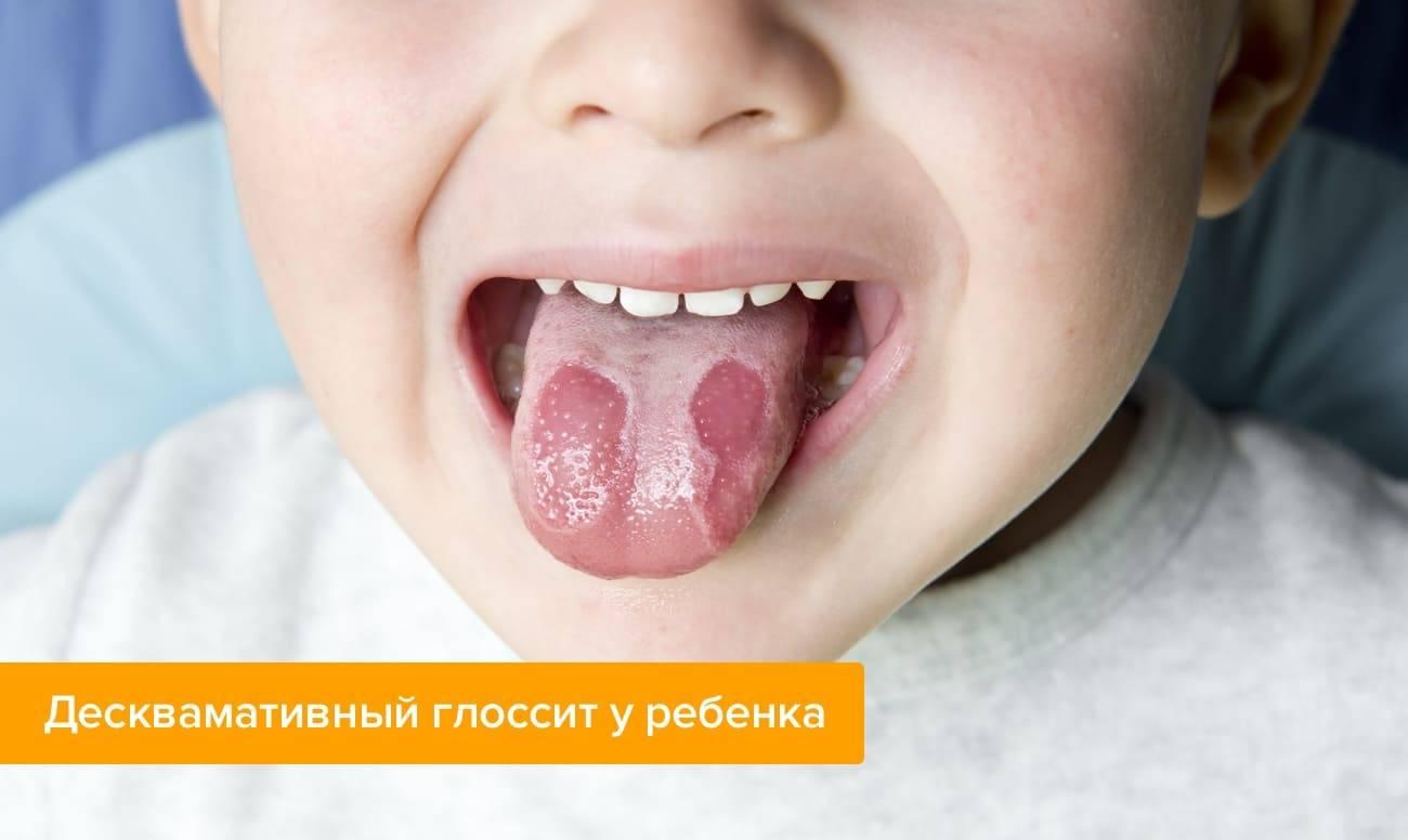 Географический язык у ребенка: причины возникновения, лечение, что делать